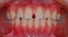 上下顎歯列にスペース(隙っ歯)を認める上下顎前突症例