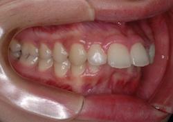 リンガルブラケット(見えない矯正)で治療したシビアな上顎前突
