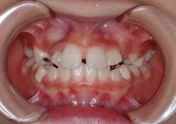 早期治療により非抜歯にて治療が完了できた小児の叢生(ガタガタの歯並び)症例