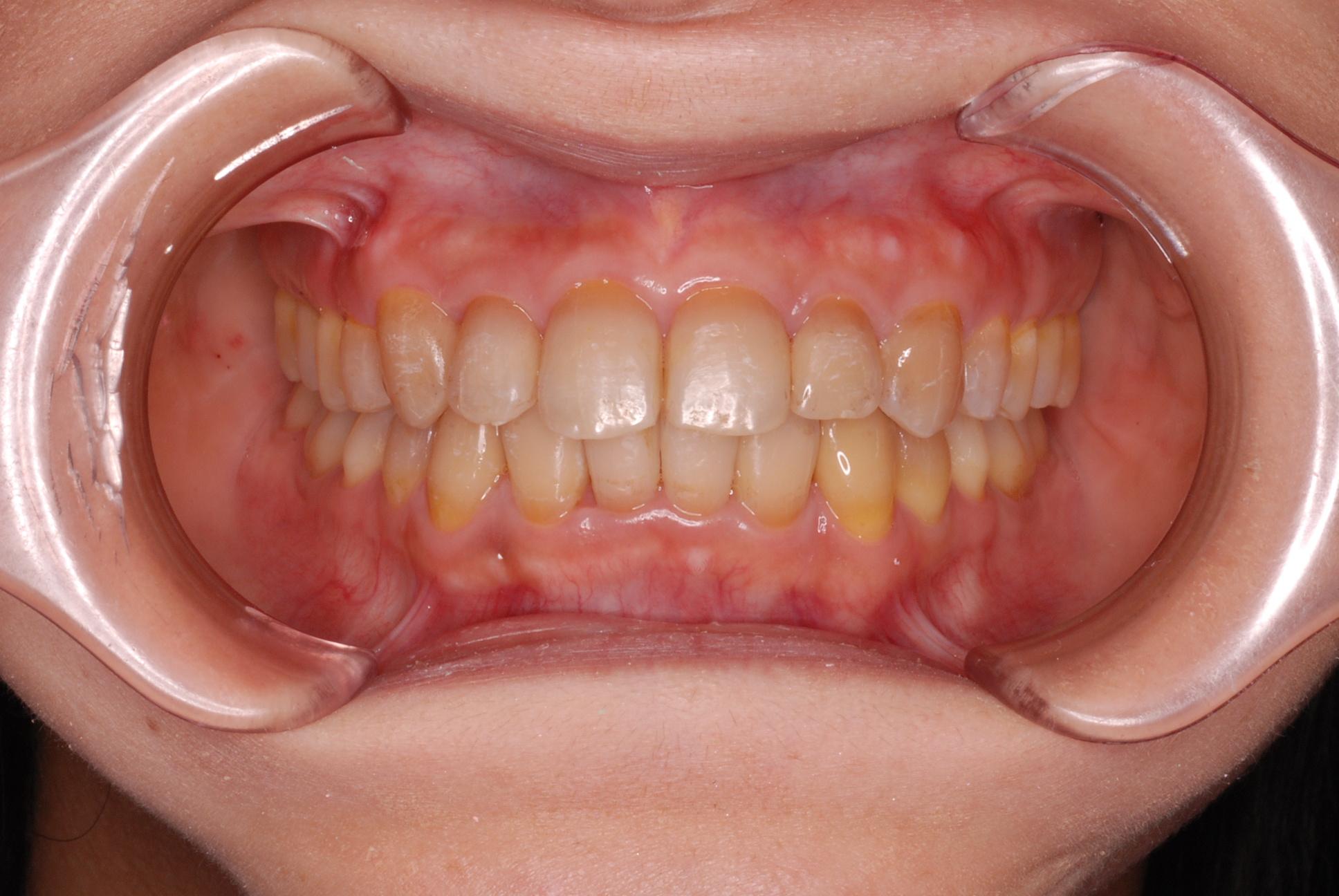 非抜歯にて治療を行った、成人の叢生(ガタガタの歯並び)治療例