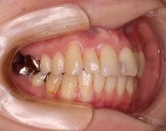 変則的な抜歯にて治療した成人女性のガタガタの歯並び(叢生)治療例