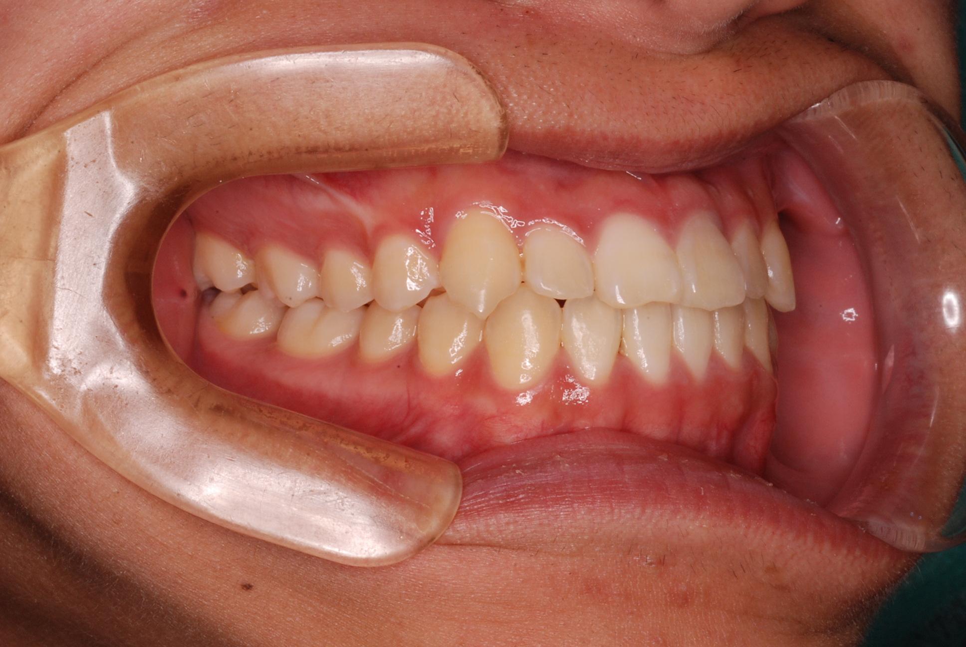 成長終了期の骨格性反対咬合(受け口)の治療例