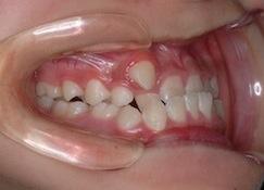 成長期の骨格性反対咬合(受け口)の治療例