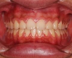 空隙歯列(隙っ歯)をともなう上顎前突症(出っ歯)