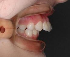 リンガルブラケット(見えない矯正)で治療した重度の上顎前突症例