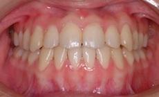 非抜歯にて治療を行った叢生をともなう開咬症例