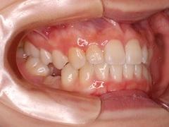 埋伏歯(2本)の牽引治療症例