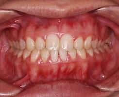 顎変形症〜外科的矯正治療例(下顎骨の側方偏位)〜