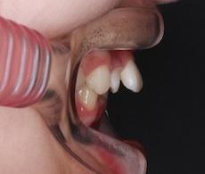 成長期に上顎骨の成長コントロールを行ったシビアな骨格性上顎前突症例