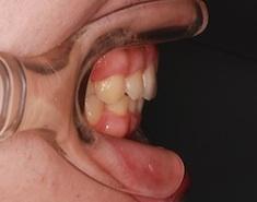 成人男性の上顎前歯前突症例