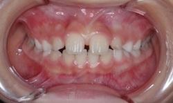埋伏犬歯を有する空隙歯列(隙っ歯)の治療例