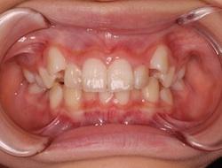 非抜歯にて治療を行った叢生症例