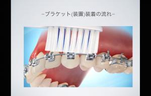 歯磨き のコピー