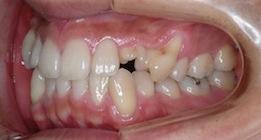 上顎犬歯が方向異常と歯牙腫により埋伏していた叢生症例