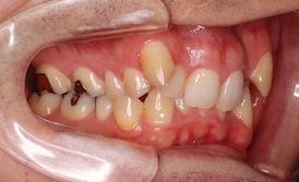 重度の叢生(ガタガタの歯並び)をともなう過蓋咬合症例