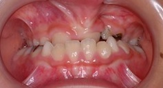 口唇口蓋裂に起因する反対咬合(受け口)の矯正治療
