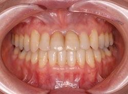 前歯部に叢生をともなう骨格性反対咬合の治療症例