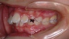長期にわたる上顎骨の成長コントロール治療の成果により、非抜歯にて治療を完了することができた骨格性上顎前突症