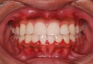 早期治療により非抜歯にて治療が完了した叢生(ガタガタの歯並び)治療例