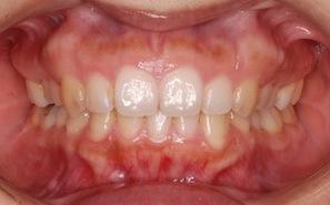 非抜歯・エナメルストリッピング法にて矯正治療を行った成人の叢生治療例