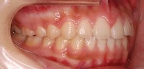成長期の上顎前突(出っ歯)症例。