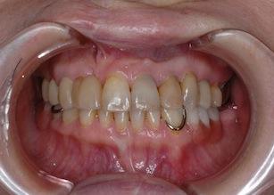 多数歯欠損をともなう口唇口蓋裂に起因する反対咬合の治療例。