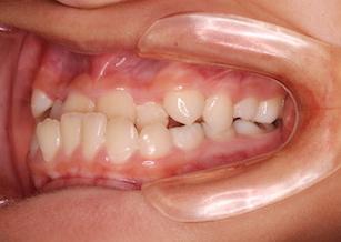 成長期のお子様の骨格性反対咬合(受け口)の治療例。