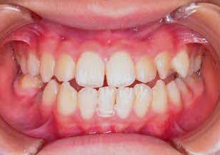 側方歯部に開咬をともなう反対咬合(受け口)症例。