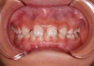 4本の先天欠如歯を認める過蓋咬合症例。