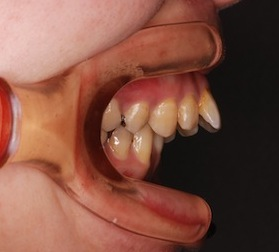 矯正用インプラントアンカー(ミニスクリュー)を利用して治療を行った骨格性上顎前突症例。