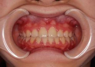 早期治療により永久歯を抜かずに完了した叢生症例