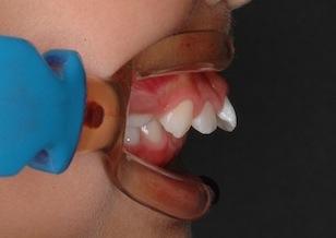 成長期の骨格性上顎前突(出っ歯)の治療例。(非抜歯)