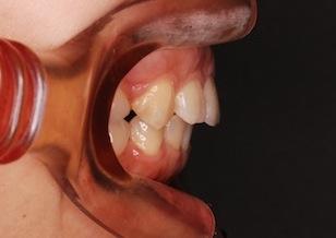臼歯部に交叉咬合を認める成人の上顎前突症