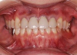 下顎臼歯部に欠損歯を有する前歯部反対咬合症例。