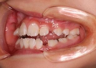 成長発育期の開咬症例。