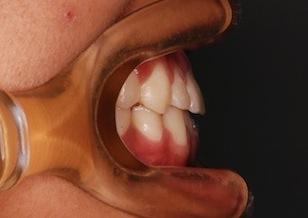 顎変形症〜外科的矯正治療例(下顎前突症)〜