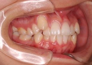 小臼歯抜歯にて治療を行った重度の叢生(ガタガタの歯並び)症例。