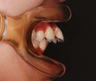 下顎歯列に先天欠如歯1本を認める骨格性上顎前突症例