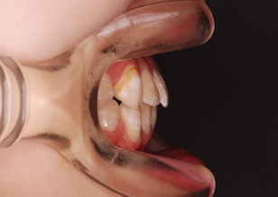 顎変形症〜外科的矯正治療〜