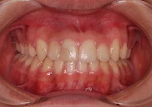 非抜歯で治療を行った成長期の反対咬合(受け口)症例。