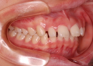 上顎歯列に空隙(隙っ歯)が7カ所、下顎歯列に空隙を4カ所を認める症例。
