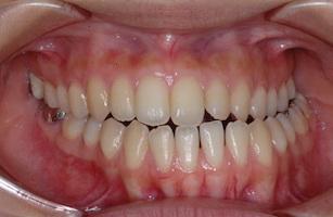 顎変形症〜外科的矯正治療例〜(下顎骨の側方変位による交叉咬合)