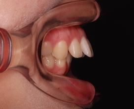 リンガルブラケットにて治療を行った、先天欠如歯をともなう上顎前突症例
