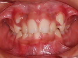 ペンンデュラムアプライアンスを用い、非抜歯にて矯正治療を行った埋伏歯をともなう叢生症例