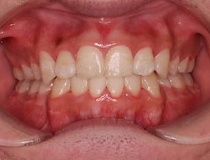 歯周病(歯肉炎)を認める叢生症例