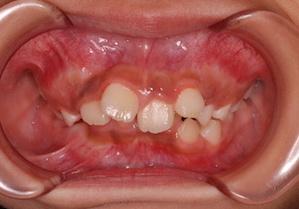 叢生をともなう重度の骨格性上顎前突症