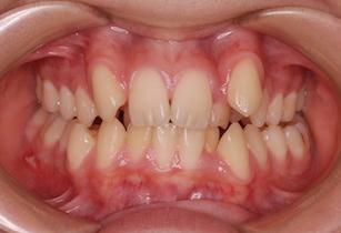 小臼歯4本抜歯にて矯正治療を行った重度の叢生(ガタガタの歯並び)症例。
