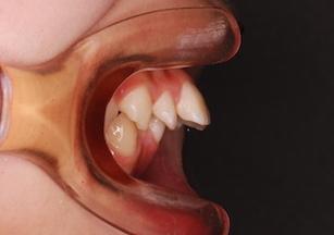 叢生をともなう上顎前突症例