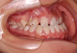 埋伏歯をともなう顎変形症(下顎前突症)