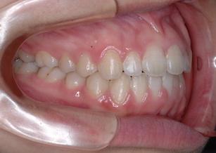 舌癖のコントロールを行い非抜歯にて矯正治療を行った開咬症例